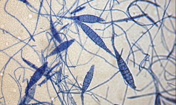 Грибок микроспории под микроскопом