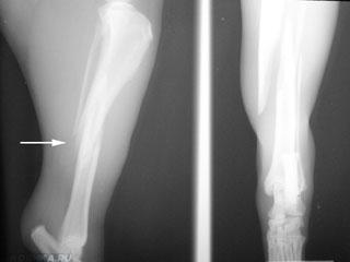 Перелом задней лапы у кошки на УЗИ