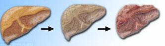 Этапы цирроза печени у кошки