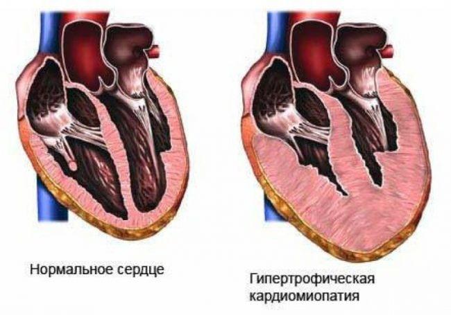Гипертрофическая кардиомиопатия у кошки на схеме