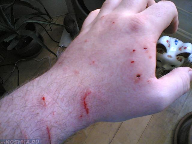 Кошка поцарапала и покусала руку хозяина