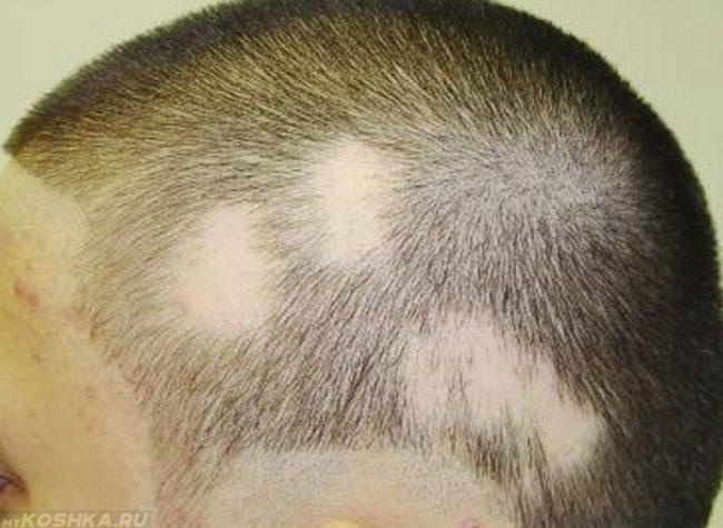 Стригущий лишай у человека на голове