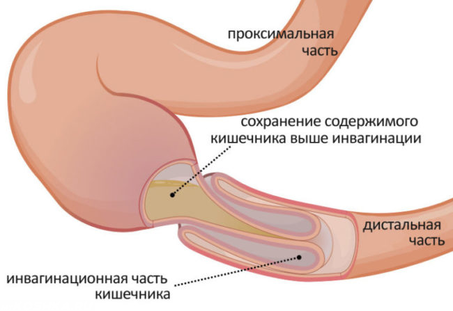 Схема кишечной непроходимости у кота