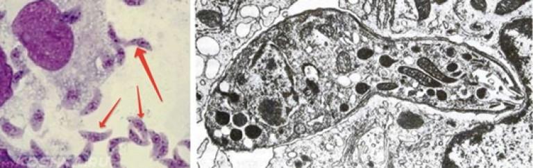 паразиты в мышечной ткани и суставах человека
