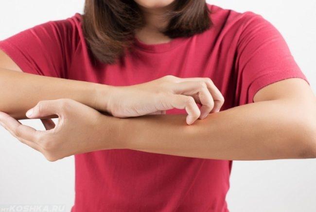 Женщина в розовой кофте чешет свою левую руку