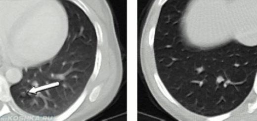 Метастазы в лёгких у кошки на снимке