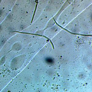 Дирофилярия под микроскопом