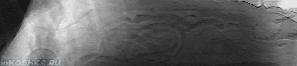 Диагностика холецистита на снимке рентгена