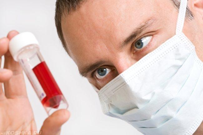 Анализ крови в прозрачной колбе