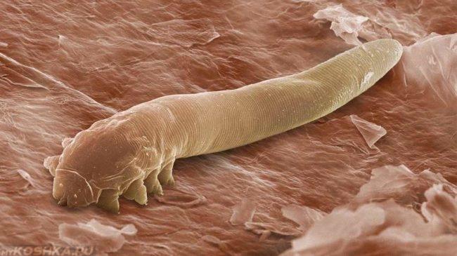 Клещ демодекс увеличенный под микроскопом