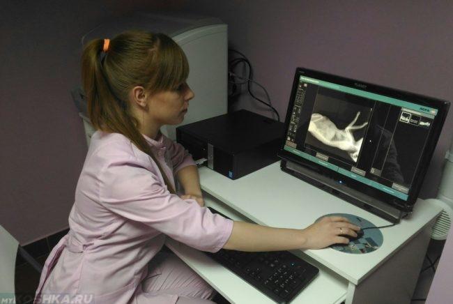 Рентгеновский снимок на мониторе