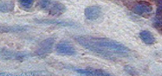Вирус парагриппа у собаки вблизи под микроскопом