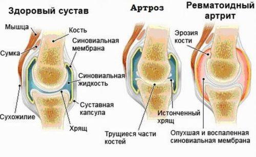 Артроз изображённый на рисунке