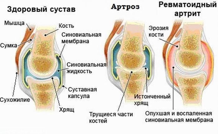 bone arthritis