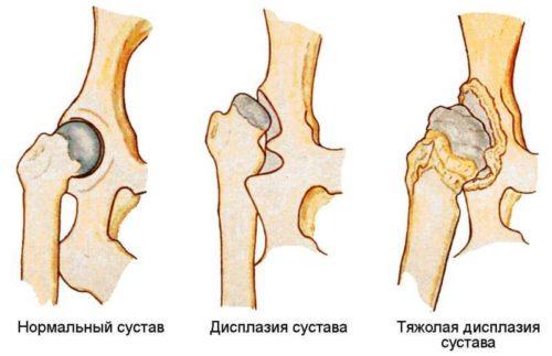 Степени дисплазии локтевого сустава у собаки в виде схемы