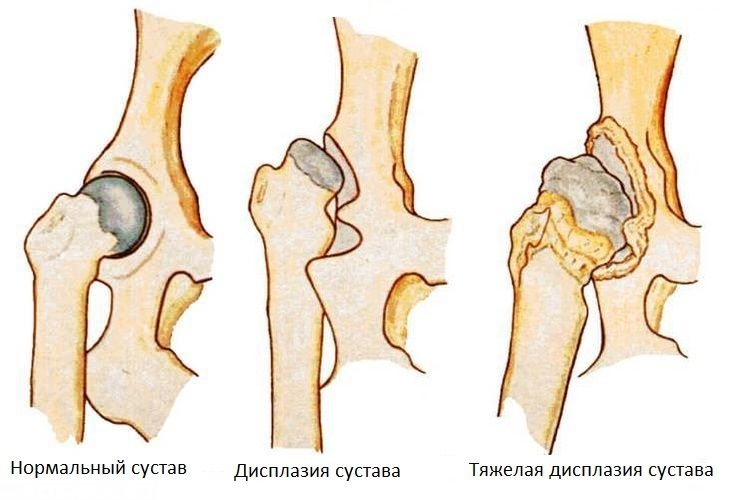 Дисплазия тазобедренных суставов лабрадоров последствия плохие после эндопротезирования коленного сустава