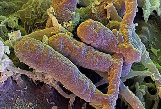 Грибок возбудитель микроспории под микроскопом