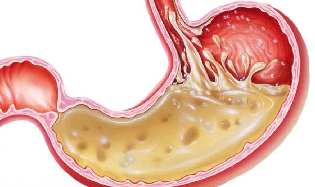 Желудочная кислота в виде рисунка
